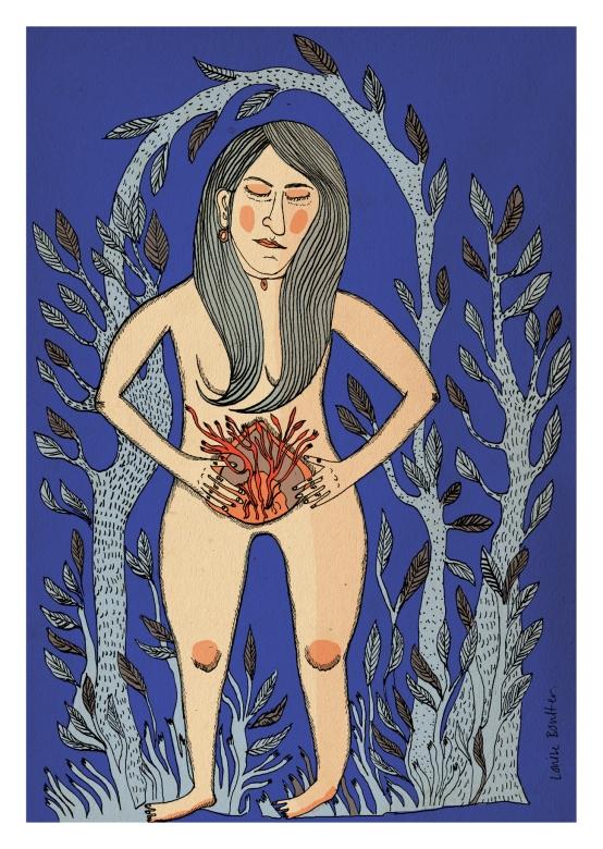 Endometriosis150